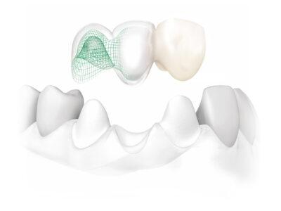 Κεραμικες θηκες δοντιων, Ιωαννα κληρονομου, Οδοντιατρος πειραιας
