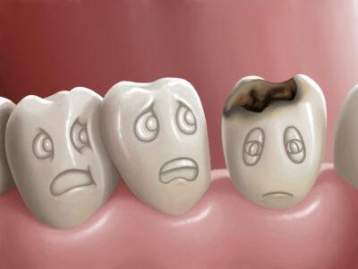Οδοντιατρικα σφραγισματα, Ιωαανα κληρονομου, οδοντιατρος πειραια