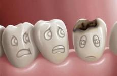 Sealants δοντιών