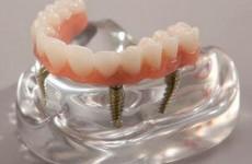 Επένθετη ολική οδοντοστοιχία
