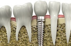 Εμφυτευματα δοντιων, implants, Οδοντιατρείο πειραιά