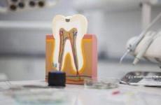 Κληρονόμου Ιωάννα | Απονευρωση δοντιου, Οδοντιατρείο πειραιά
