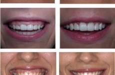 smile lift
