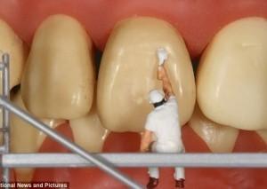 Λεκεδες δοντιων