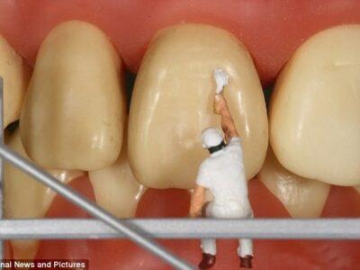 Λευκανση δοντιων