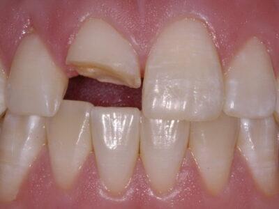 Αποκατάσταση σπασμένου δοντιού