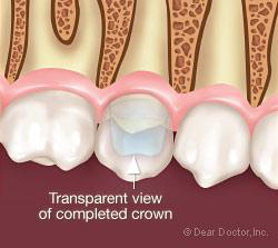 Εικονα αποκαταστασης σπασμενου δοντιου με θήκη δοντιου