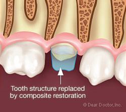 Εικονα αποκαταστασης σπασμενου δοντιου
