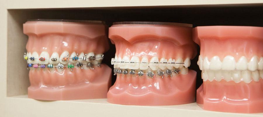 diaforetikoi tipoi orthodontikon mixanismon, siderakia kai narthikes